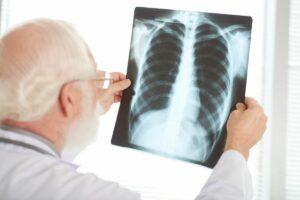 Rak płuca przyczyny SQDA